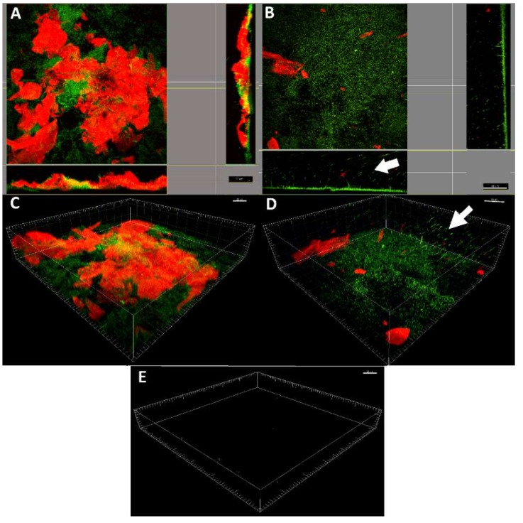 Confocal laser scanning microscopy analysis. Representative projection analysis ( A , B ) and three-dimensionally (3D) reconstructed CLSM images ( C , D ) of E. coli biofilm grown on non-functionalized LDPE surface ( A , C ) and LDPE-α-CT ( B , D ) functionalized surface (63×, 0.9 NA water immersion objective). The arrows indicate cells detaching from the biofilm. Live cells were stained green with SYBR Green I (λ ex at 488 nm, λ em at 520 nm), whereas the polysaccharide matrix was stained red with Texas Red-labeled concanavalin A (ConA) (λ ex at 543 nm, λ em at 615 nm). ( E ) Representative 3D reconstructed CLSM images of LDPE and LDPE-α-CT without biofilm and stained with SYBR Green I or Texas Red-labeled ConA showing no detectable fluorescence. Scale bar = 20, 30, or 40 µm.