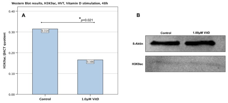Western Blot analysis of H3K9ac expression in HVT cells after 48 h stimulation with human calcitriol. ( A ) Bar graph diagram showing a significant ( p = 0.03) downregulation of H3K9ac after 48 h stimulation with human calcitriol at 1.0 µM. ( B ) Representative photograph of the western blot membrane with detected bands for H3K9 and endogenous control (β-Actin).