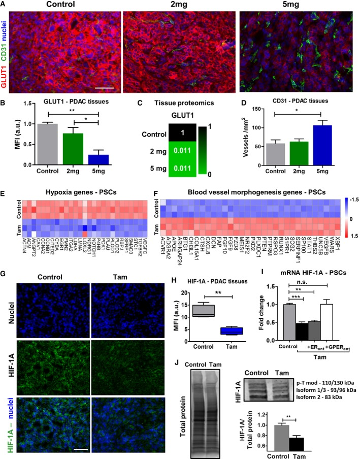 Tamoxifen decreases hypoxia and increases vascularization Immunofluorescence images of PDAC tissues from KPC mice treated with vehicle control of tamoxifen, scale bar 100 μm. (B, D) Quantification of GLUT1 (hypoxia marker) and CD31 (endothelial cell marker). Control ( n = 5), 2 mg ( n = 5), and 5 mg ( n = 4). In all cases, bars represent mean ± SEM. (C) Relative values of protein levels for Glut1 in PDAC tumors assessed by proteomic analysis (6 mice for control and 2 mg and 3 mice for 5 mg, and samples were analyzed in duplicates). Expression levels of DEGs relevant to response to hypoxia (left) and blood vessel morphogenesis (right). The values were normalized by tubulin family genes. Immunofluorescence images of PDAC tissues from KPC mice treated with vehicle control and 5 mg of tamoxifen, scale bar 100 μm. Quantification of HIF‐1A in PDAC tissues. Control ( n = 5) and 5 mg ( n = 4). In the box‐and‐whisker plot, the central box represents values from the lower to upper quartile. The middle line represents the mean. The vertical line extends from the minimum to the maximum value. qPCR levels of HIF‐1A in PSCs, normalized to RPLP0 and relative to control. Western blot bands for protein expression in PSCs (p‐Tmod is post‐translational modification). The plot shows the quantification of the sum of band intensities corresponding to isoform 1, isoform 2, isoform 3, and post‐transcriptionally modified HIF‐1A ( n = 8 control and n = 8 tam). Data information: All histogram bars represent mean ± SEM; * P