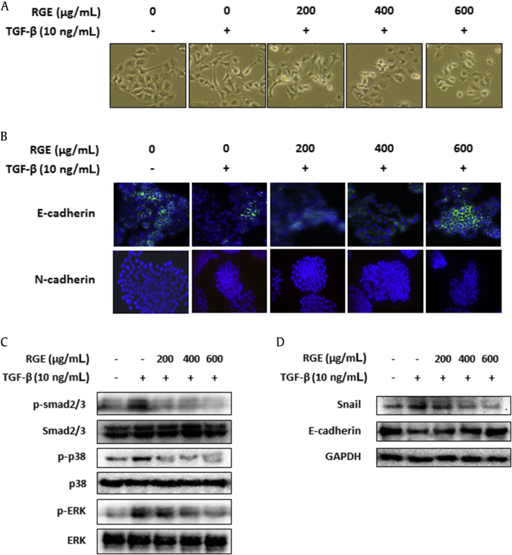 Korean Red Ginseng extract (RGE) suppressed epithelial–mesenchymal transition through the expression of Snail and E-cadherin via the Smad- and mitogen-activated protein kinase signaling pathways. (A) Effects of RGE on morphological changes of transforming growth factor-β1 (TGF-β1)-induced epithelial–mesenchymal transition in HT29 cells. The cells were treated with TGF-β1 (10 ng/mL) and RGE (200–600 μg/mL) for 72 h. (B) The expression of E-cadherin and N-cadherin was detected by immunofluorescence in (C) HT29 cells. The cells were plated in an eight-chambered slide and treated with various concentrations of RGE in the presence or absence of TGF-β1 for 72 h, respectively. (C) and (D) The Smad2/3- and p38/ERK-signaling pathways in TGF-β1-treated HT29 cells. TGF-β1 and RGE (200–600 μg/mL) were treated to cells for 72 h. (C) The phosphorylation of Smad2/3, p38, and ERK, and (D) the protein expressions of Snail and E-cadherin were confirmed by Western blotting. ERK, extracellular signal-regulated kinase; GAPDH, glyceraldehyde-3-phosphate dehydrogenase.