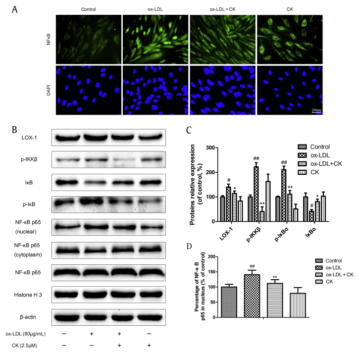 CK reduces ox-LDL-induced HUVECs inflammation through inhibiting the NF-κB pathway. (A) HUVECs were pretreated with CK (2.5μM) for 12 h, followed by treatment with ox-LDL (80 μg/mL) for another 24 h. NF-κB p65 immunoreactivity was observed by immunofluorescence assay. (B) HUVECs were treated as described in (A). LOX-1, p-IKKβ, p-IκBα, IκBα, NF-κB p65 (nuclear), NF-κB p65 (cytoplasm), NF-κB p65, Histone H3, and β-actin were evaluated by Western blot analysis. (C) Densitometric analysis was used to quantify the levels of LOX-1, p-IKKα/β, p-IκB and IκB. (D) Densitometric analysis was used to quantify the levels of NF-κB p65. Values are expressed as the mean ± SD, n = 3. # p
