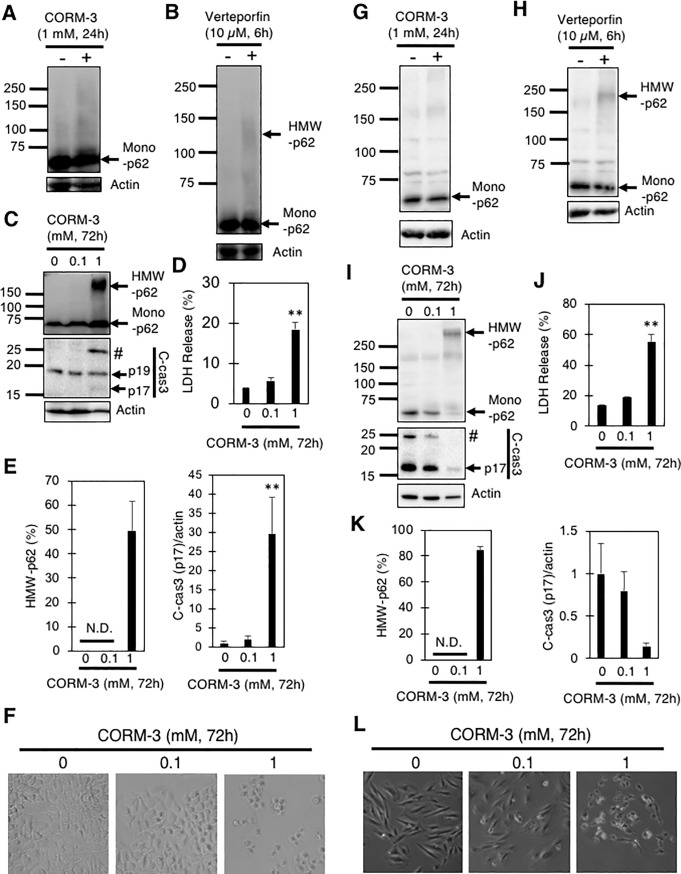 Generation of HMW-FN by CORM-3 in A549 and H9c2 cells. A549 cells (A-E) or H9c2 cells (G-K) treated with verteporfin (10 μM, 6 hours) or CORM-3 (0–1 mM, 24 or 72 hours) were subjected to immunoblot analysis using anti-p62 and anti-cleaved caspase 3 (c-cas3) antibodies. #, uncharacterized fragment. Percentages of HMW-p62 in total (HMW+mono) p62 and relative levels of c-cas3 (p17) to actin are also shown. (D and J) Percentages of LDH released from A549 (D) and H9c2 (J) cells into the medium 72 hours after treatment with the indicated concentrations of CORM-3. Graphs show means and S.E. (n = 4). **, p