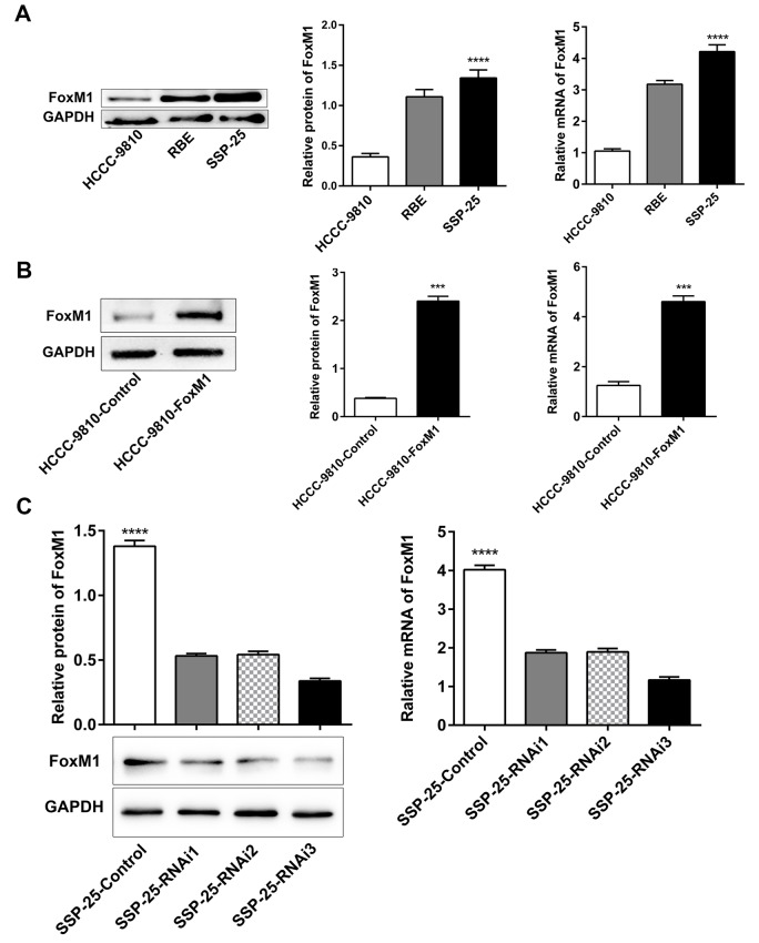 Selection and establishment of stably transfected ICC cell lines with FoxM1. ( A ) The protein and mRNA expression of FoxM1 in ICC cell lines (HCCC-9810, RBE, and SSP-25). Western blotting and qRT-PCR analysis showed successful overexpression ( B ) and knockdown ( C ) of FoxM1 in ICC cells (HCCC-9810 and SSP-25, respectively). *** P