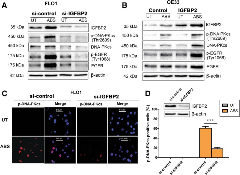IGFBP2 is required for acidic bile salts-induced EGFR and DNA-PKcs activation in EAC cells. a , FLO1 cells with IGFBP2 knockdown (si-IGFBP2) and control cells were treated with acidic bile salts (ABS, pH 4, 200 μM) for 20 min and then recovered for 0.5 h. Whole cell lysates were applied in western blot analysis to detect p-EGFR (Tyr1068) and p-DNA-PKcs (Thr2609). b , OE33 cells with IGFBP2 overexpressing and control cells were treated with ABS for 20 min and then recovered for 0.5 h. Whole cell lysates were used for western blot analysis to detect p-EGFR (Tyr1068) and p-DNA-PKcs (Thr2609). c and d , FLO1 cells with IGFBP2 knockdown and control cells were treated with ABS for 20 min and then recovered for 0.5 h. Immunofluorescence staining for p-DNA-PKcs (Thr2609) was performed. Quantification of positive p-DNA-PKcs cells was performed using image J and presented as a percentage of positive cells ( d ). *** p