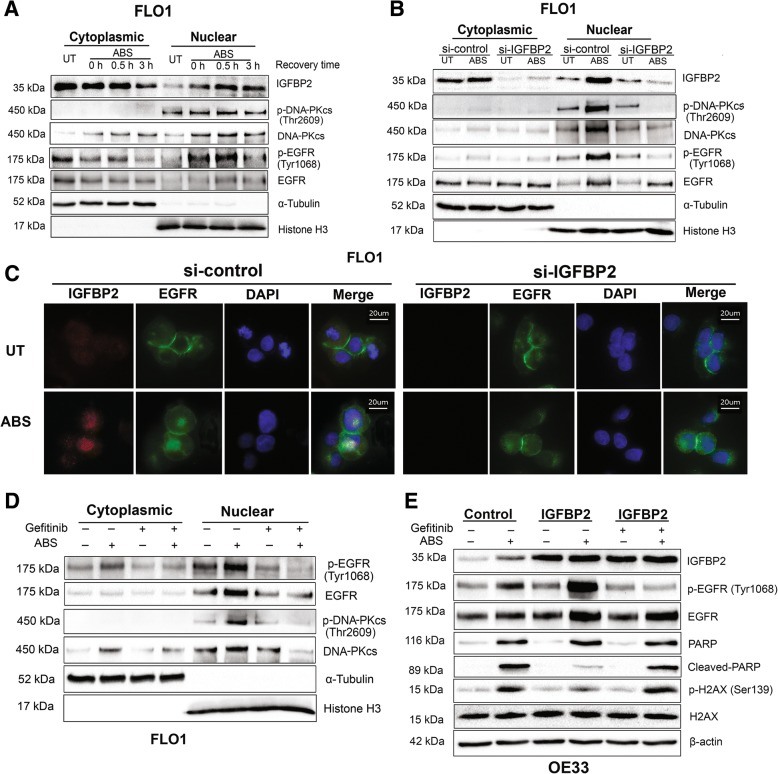 IGFBP2 is required for acidic bile salts-induced EGFR nuclear accumulation to activate DNA-PKcs in EAC cells. a , FLO1 cells were treated with acidic bile salts (ABS, pH 4, 200 μM) for 20 min and recovered for 0.5 h and 3 h. Cytoplasmic and nuclear fractions were analyzed using western blot analysis. Data shows that ABS induces IGFBP2 nuclear translocation as well as accumulation of p-EGFR. b , FLO1 cells with IGFBP2 knockdown (si-IGFBP2) and control cells were treated with ABS for 20 min and recovered for 0.5 h. Cytoplasmic and nuclear fractions were analyzed by using western blot analysis. Data displays attenuated nuclear accumulation of IGFBP2, p-EGFR, and p-DNA-PKcs, following knockdown of IGFBP2 and ABS treatment. c , FLO1 cells with IGFBP2 knockdown and control cells were treated with ABS for 20 min and recovered for 0.5 h. Immunofluorescence staining for IGFBP2 (red) and EGFR (green) was performed. DAPI (blue) was used to stain the nuclei. d , FLO1 cells were treated with EGFR tyrosine kinase inhibitor, gefitinib (10 μM) for 24 h. Then cells were exposed to ABS for 20 min and recovered for 0.5 h. Cytoplasmic and nuclear fractions were analyzed by using western blotting. e , OE33 cells with IGFBP2 overexpression were treated with and without EGFR tyrosine kinase inhibitor, gefitinib (10 μM) for 24 h. Then cells were treated with ABS for 20 min and recovered for 3 h. Cytoplasmic and nuclear fractions were analyzed by using western blotting