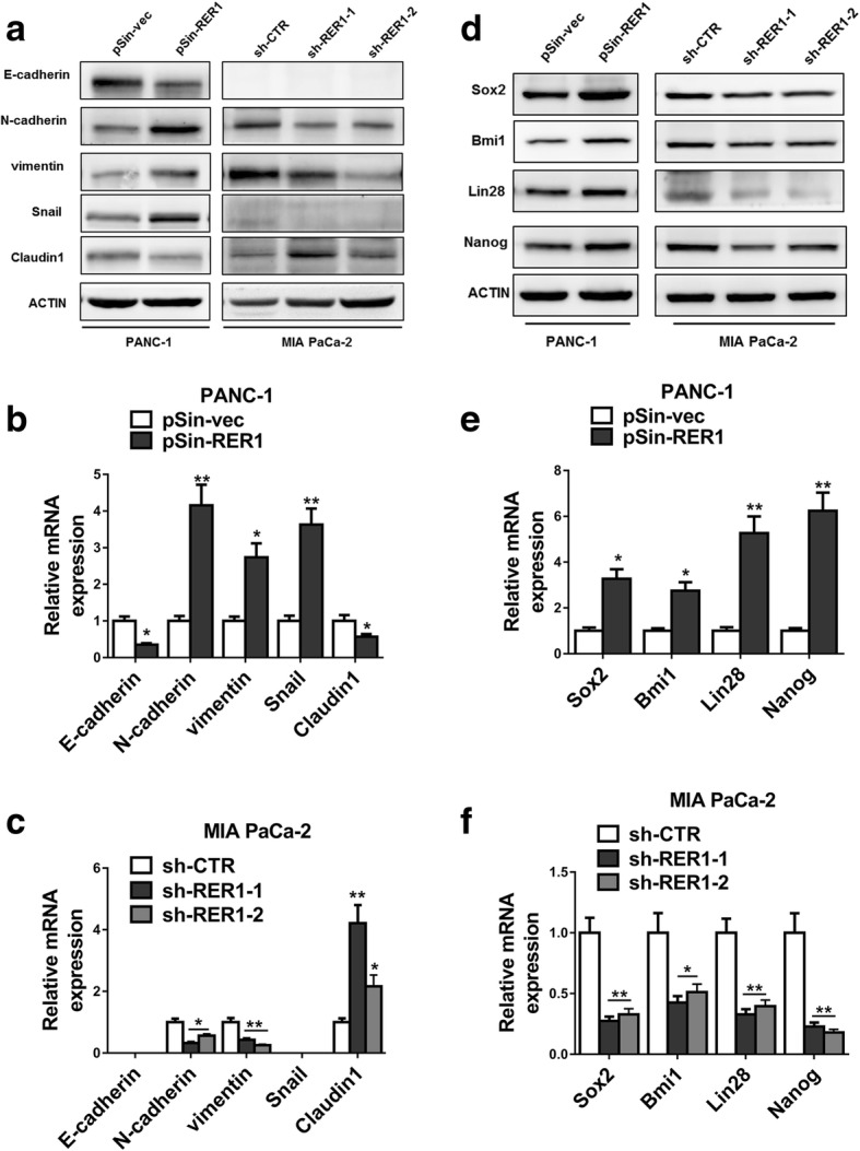 RER1 promotes PC malignance through regulation of EMT and CSC pathway. ( a - c ) RER1 overexpression or knockdown PANC-1 and MIA PaCa-2 cells were subjected to Western blot and qRT-PCR analyses of E-cadherin, N-cadherin, vimentin, snail, claudin-1 and actin. ( d - f ) RER1 overexpression or knockdown PANC-1 and MIA PaCa-2 cells were subjected to Western blot and qRT-PCR analyses of Sox2, Bmi1, Lin28, Nanog and actin. One representative of at least three independent experiments with similar results is shown. *P