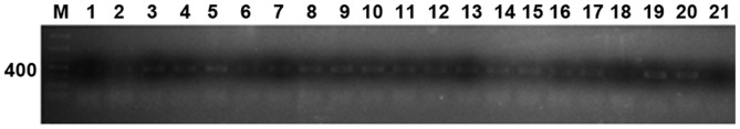 Electrophoretogram of IL-13 Arg130Gln PCR product. M: marker; 1–21 indicate part of the objects of study.