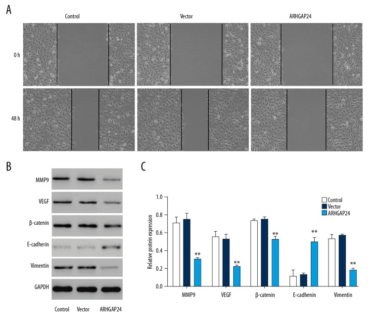 ARHGAP24 overexpression inhibits MMP9, VEGF, Vimentin, E-cadherin, and β-catenin expression in A549 cells. After A549 cells were subjected to blank pLVX-Puro or pLVX-Puro-ARHGAP24 transfection, the migration was assessed in in vitro would healing assay ( A ), and protein expression of MMP9, VEGF, Vimentin, E-cadherin, and β-catenin of A549 cells was measured by Western blot analysis ( B, C ). ** P