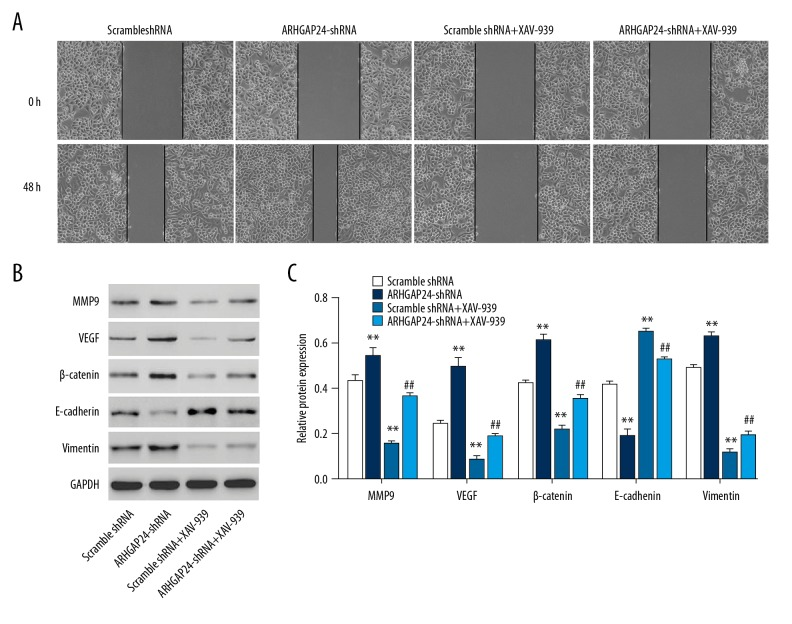 ARHGAP24 silencing promotes MMP9, VEGF, Vimentin, E-cadherin, and β-catenin expression in NCI-H1975 cells. The migration was assessed in in vitro would healing assay ( A ), and the protein expression of MMP9, VEGF, Vimentin, E-cadherin, and β-catenin in NCI-H1975 cells with blank pLVX-Puro or pLVX-Puro-ARHGAP24 transfection in the absence or presence of 10 μM XAV-939 treatment was measured by Western blot analysis ( B, C ). ** P