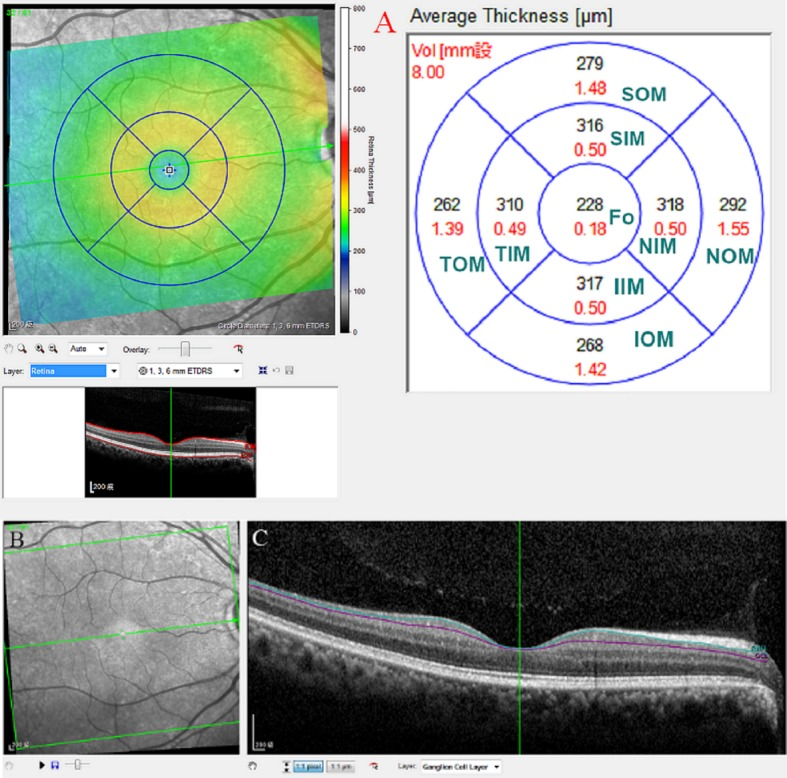 Layer-by-layer segmentation was executed automatically using the new software for the Spectralis OCT. (A) Nine macular sectors of every single retinal layer in spectral-domain optical coherence tomography. The superior outer macula, superior inner macula, fovea, inferior inner macula and inferior outer macula were used for analysis. (B) Infrared reflectance image of the macular region. (C) Segmented macular ganglion cell layers in B scan images. ** SIM: superior inner macula, IIM: inferior inner macula, TIM: temporal inner macula, NIM: nasal inner macula; SOM: superior outer macula, IOM: inferior outer macula, TOM: temporal outer macula, NOM: nasal outer macula, fo: fovea, mRNFL: macular retinal nerve fiber layer, mGCL: macular ganglion cell layer.