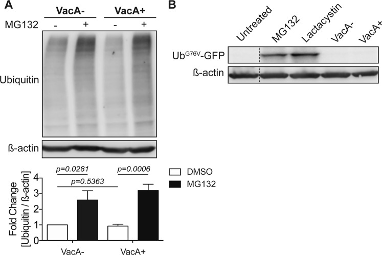 VacA disrupts autophagy but does not impair proteasome degradation. ( A ) AGS cells were infected with a CagA+ vacA isogenic mutant strain and co-cultured in the presence or absence of VacA− or VacA+ CCMS for 19 hours using a gentamycin protection assay. MG132 (5 μM) was added during the 14-hour low-dose gentamycin incubation. DMSO was used as a vehicle control. Ubiquitin protein levels were measured by Western blotting using β-actin as loading control. Graph shows fold change of ubiquitin normalized to β-actin relative to vehicle control (mean + SEM; n = 5). ( B ) Ub G76V -GFP HeLa cells were treated with 10 μM of MG132 or Lactacystin for 4 and 8 hours respectively, or VacA+ or VacA− CCMS for 32 hours. Ub G76V -GFP protein levels were measured by Western blotting using β-actin as loading control (mean + SEM; n = 3). Relevant gel bands were cropped from the original blots. Dotted line indicates slicing of two regions together from the same blot. Statistical analysis was performed using Student's t-test.