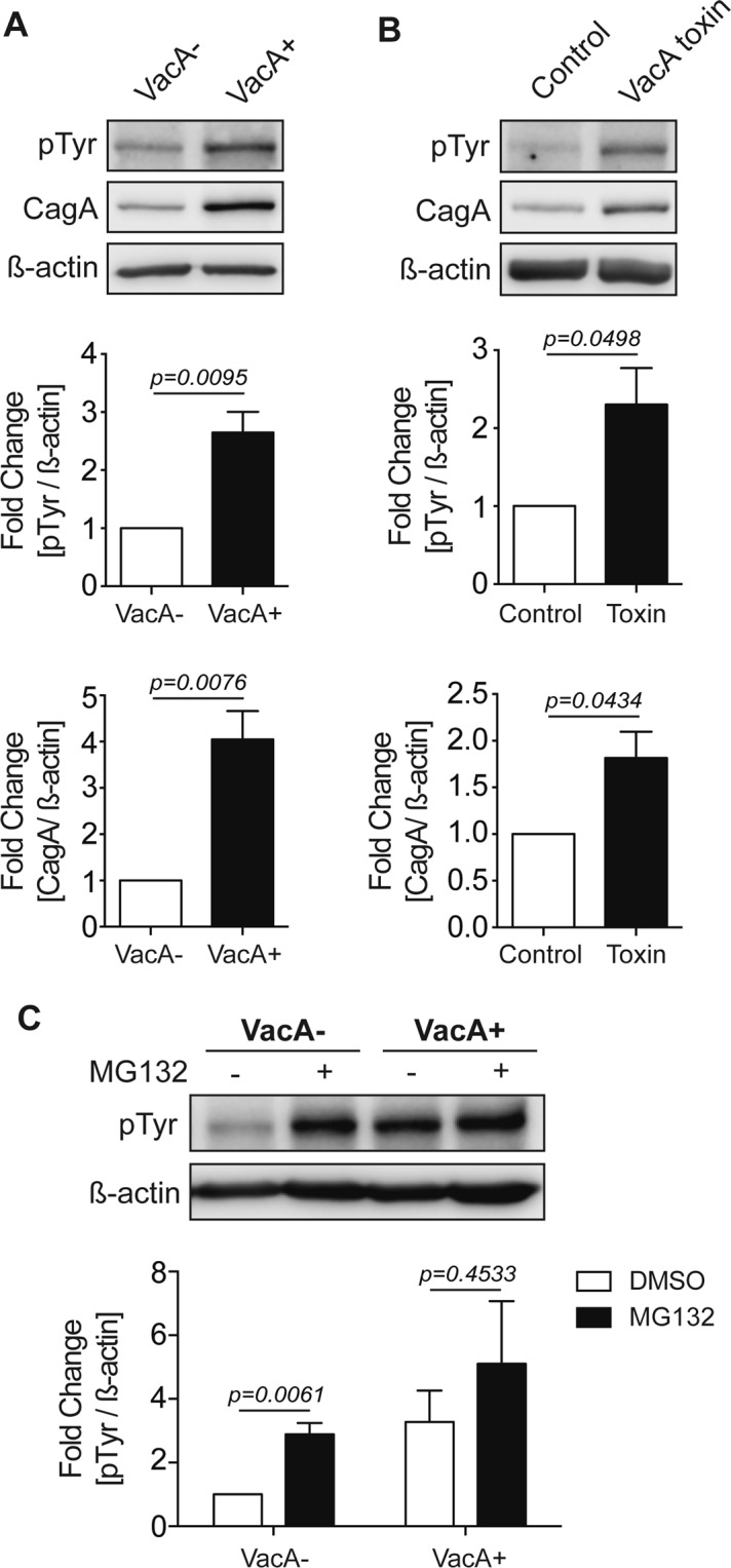 VacA promotes the accumulation of phosphorylated CagA. AGS cells were infected with a CagA+ vacA − isogenic mutant strain in the presence of (A) VacA− or VacA+ CCMS and ( B ) untreated or treated with purified VacA toxin for 20 hours using a gentamycin protection assay. Phosphorylated CagA (pTyr) and total CagA levels were measured by Western blotting using β-actin as a loading control. ( C ) AGS cells were infected with a CagA+ vacA − isogenic mutant strain in the presence of VacA− or VacA+ CCMS for 19 hours using a gentamycin protection assay and incubated with DMSO or MG132 (5 μM). Phosphorylated CagA levels were measured by Western blotting using β-actin as loading control. Graphs show fold change of pTyr or CagA normalized to β-actin (mean + SEM; n = 3). Statistical analysis was performed using Student's t-test.