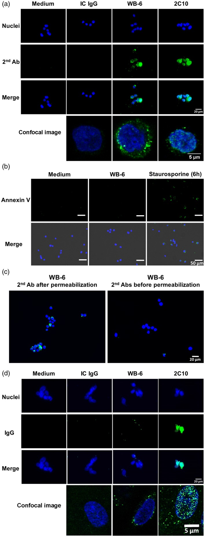 Internalization of WB‐6 into living human monocytic leukemia cell line THP‐1 cells and human umbilical vein endothelial cells (HUVECs). (a) THP‐1 cells were incubated with 25 µg/ml WB‐6, isotype‐matched control (IC) or 5 µg/ml 2C10 for 2 h. After washing, fixation, permeabilization and blocking, internalized immunoglobulin (Ig)G was detected using <t>Alexa</t> Fluor 488‐labeled goat anti‐mouse <t>IgG</t> (green). (b) THP‐1 cells were incubated with (center column) or without (left column) 25 µg/ml WB‐6 for 2 h or 1 µM staurosporine for 6 h (right column), and expression of phosphatidylserine was tested using annexin V‐biotin and fluorescein isothiocyanate (FITC)‐streptavidin (green). (c) THP‐1 cells were incubated with 25 µg/ml WB‐6 for 2 h, and Alexa Fluor 488‐labeled goat anti‐mouse IgG (green) was added after (left) or before (right) fixation and permeabilization. (d) Internalization of WB‐6 into HUVECs was tested according to the same protocol as (a). In all experiments, the nuclei were stained with Hoechst 33342 (blue). A representative of three independent experiments with similar results is shown.
