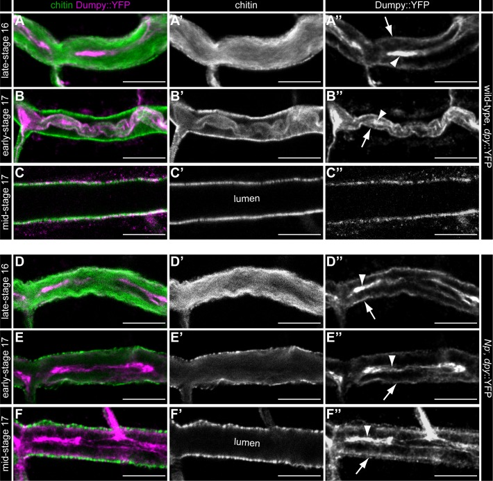 """Notopleural  is required in the trachea for luminal Dumpy degradation. Confocal LSM images of whole-mount antibody stainings of  dpy ::YFP/ dpy ::YFP (A-C"""") and  Np P6 , dpy ::YFP/  Np P6 , dpy ::YFP mutant (D-F"""") embryos at late-stage 16 (A-A"""", D-D""""), early-stage 17 (B-B"""", E-E"""") and mid-stage 17 (C-C"""", F-F"""") stained with CBP and anti-GFP antibody. During late-stage 16 tracheal luminal Dpy::YFP (magenta) forms a central core (arrowhead in A"""") and a peripheral """"shell"""" layer (arrow in A""""; see also [  22 ]) in  dpy ::YFP embryos. In  Np  mutant embryos the luminal Dpy::YFP core (arrowhead in D"""") and """"shell"""" (arrow in D"""") are also formed normally. Dpy::YFP and luminal chitin (green) condense at early-stage 17 (arrowhead and arrow in B"""") and during mid-stage 17 the tracheal lumen is cleared from luminal chitin and Dpy (C', C"""") in  dpy ::YFP embryos.  Np  mutant embryos show no Dpy::YFP condensation during early stage 17 (arrowhead and arrow in E""""; compare with B"""") and no luminal clearance of Dpy::YFP during mid-stage 17 (F""""; compare with C""""). Note: Chitin is cleared normally from the tracheal lumen in  Np  mutant embryos during mid-stage 17 (F') as found in  dpy ::YFP embryos (C'). Scale bars correspond to 10 μm."""