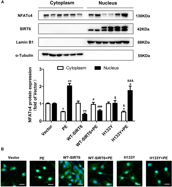 SIRT6 prevented PE-induced nuclear translocation of NFATc4 by interfering with calcineurin-NFATc4 interaction. NRCMs were transiently transfected with plasmid encoding the WT-SIRT6 and mutant of SIRT6 (H133Y) for 48 h followed by incubation with PE (100 μM for 12 h). (A) The protein expression of NFATc4 in the nucleus and cytoplasm was measured by Western blotting. (B) The presence of shuttling between the nucleus and cytoplasm of NFATc4 was observed by IF microscopy. The results were normalized to those of α-tubulin/LaminB1. The data were presented as mean ± SEM. ∗ P