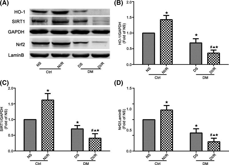 Expression of SIRT1, <t>Nrf2,</t> and HO-1 in renal tissues by Western blot analysis ( A ) Western blotting showed protein levels of SIRT1, Nrf2, and HO-1. ( B – D ) Quantitation of Western blot data from (A). Data are presented as the mean ± S.E.M. ( n =6 per group). ★ P