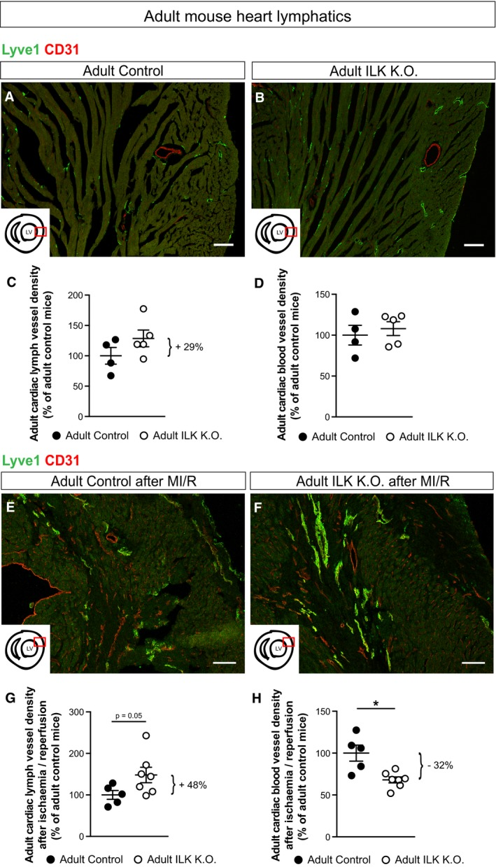 """ILK controls lymphatic vascular growth in the heart after myocardial infarction LSM images of cross‐sections through the heart of an adult Prox1‐Cre ERT2 ;Ilk +/+ mouse (referred to as """"adult control"""") and Prox1‐Cre ERT2 ;Ilk ∆/∆ mouse (referred to as """"adult ILK K.O."""") showing the outer lateral region of the left ventricle (LV). Scale bars: 100 μm. Overall cardiac lymph vessel and blood vessel density in heart sections as determined by Lyve1‐positive and CD31‐positive area (normalised to total analysed myocardial area), respectively ( n = 4 control and n = 5 ILK K.O. mice). LSM images of cross‐sections through the heart of an adult control and ILK K.O. mouse 4 weeks after myocardial ischaemia and reperfusion (MI/R), showing the outer lateral region of the LV. Scale bars: 100 μm. Overall cardiac lymph vessel and blood vessel density in heart sections as determined by Lyve1‐positive and CD31‐positive area (normalised to total analysed myocardial area), respectively ( n = 5 control and n = 7 ILK K.O. mice), P = 0.051 (cardiac lymph vessel density in adult control or adult ILK K.O.), * P = 0.025 (cardiac blood vessel density in adult control or adult ILK K.O.). Data information: Data are presented as means ± SEM, shown as percentage of control mice, unpaired two‐tailed Student's t ‐test."""