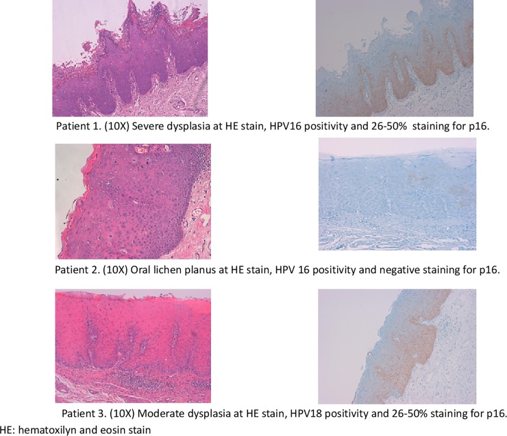 Pictures of HE and p16 INK4a IHC of 3 out 4 HPV-DNA positive cases. Patient 1. (10X) Severe dysplasia at HE stain, HPV16 positivity and 26–50% staining for p16. Patient 2. (10X) Oral lichen planus at HE stain, HPV 16 positivity and negative staining for p16. Patient 3. (10X) Moderate dysplasia at HE stain, HPV18 positivity and 26–50% staining for p16. HE: hematoxilyn and eosin stain.