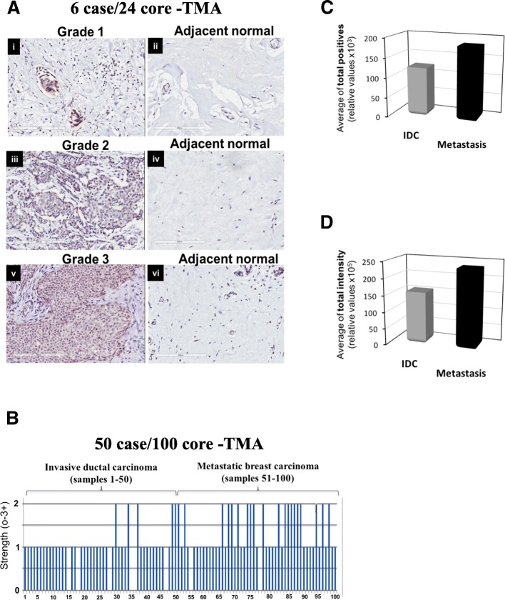 Immunoreactivity of BRK increased significantly with tumor grade and stage. a BRK expression was determined via immunohistochemistry (IHC) analyses on a 6 cases/24 cores breast cancer tissue microarray (TMA) (BR243d, USBIOMAX, USA) with matched adjacent normal breast tissue, and includes information about TNM, clinical stage and pathology grade. b BRK expression was determined by IHC analyses on a breast cancer tissue array, BR10010a (USBIOMAX, USA). The TMA contained a 50 cases/100 cores array containing 50 invasive carcinoma samples and matched lymph node metastasis samples. BRK expression increases with metastatic index. Samples 1–50 and samples 51–100 show the strength of BRK expression in 0–3+ scale in invasive ductal carcinoma and in metastatic breast carcinoma tissue, respectively. Anti-BRK antibody was used to stain the tissue sections and specific binding was detected with <t>ImmPRESS</t> TM reagent followed by color development in peroxidase substrate DAB (3,3′-diaminobenzidine). c Represents the average of the total number of samples that stained positively for BRK in all IDC samples versus metastatic carcinoma samples, and d the average total intensity for BRK in all IDC samples versus metastatic carcinoma samples