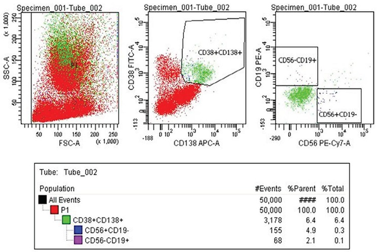Bone marrow B cell flow cytometry results from a healthy donor. First, B cells were gated by using specific cell surface markers that were CD138 + and CD38 + by determining forward and side light scattering characteristics on the <t>FACSAria</t> II Cell Sorter (Becton Dickinson, San Jose, CA, USA). Then sorted B cells using with cell sorting by the cell surface markers CD56 + , CD19 + according to the FACSAria II Cell Sorter.