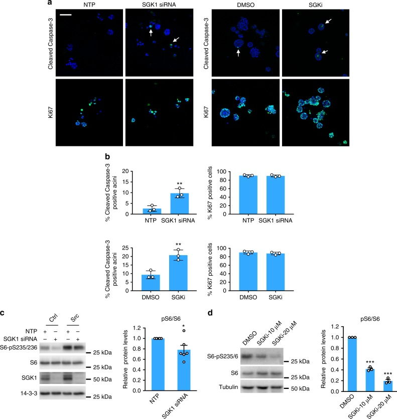 Functional characterization of SGK1 in MCF-10A_Src cells. a SGK1 knockdown or inhibition increases apoptosis in MCF-10A_Src acini. MCF-10A_Src cells were transfected with a SGK1 siRNA SMARTpool or non-targeting control (NTP) (40 nM) (left) or treated with a selective SGK1 inhibitor (SGKi) (10 μM) (right), and grown in 3D culture for 3 days or 5 days, respectively. Immunofluorescent imaging was performed using Ki67 and cleaved Caspase-3 antibodies (green) and DAPI counterstain (blue). Representative images are shown. Arrows indicate cleaved Caspase-3 positive acini. Scale bar represents 100 μm. b Percentage of cleaved Caspase-3 or Ki67 positive acini from n = 3 biological replicates. At least 50 acini were analyzed in each replicate. ** p
