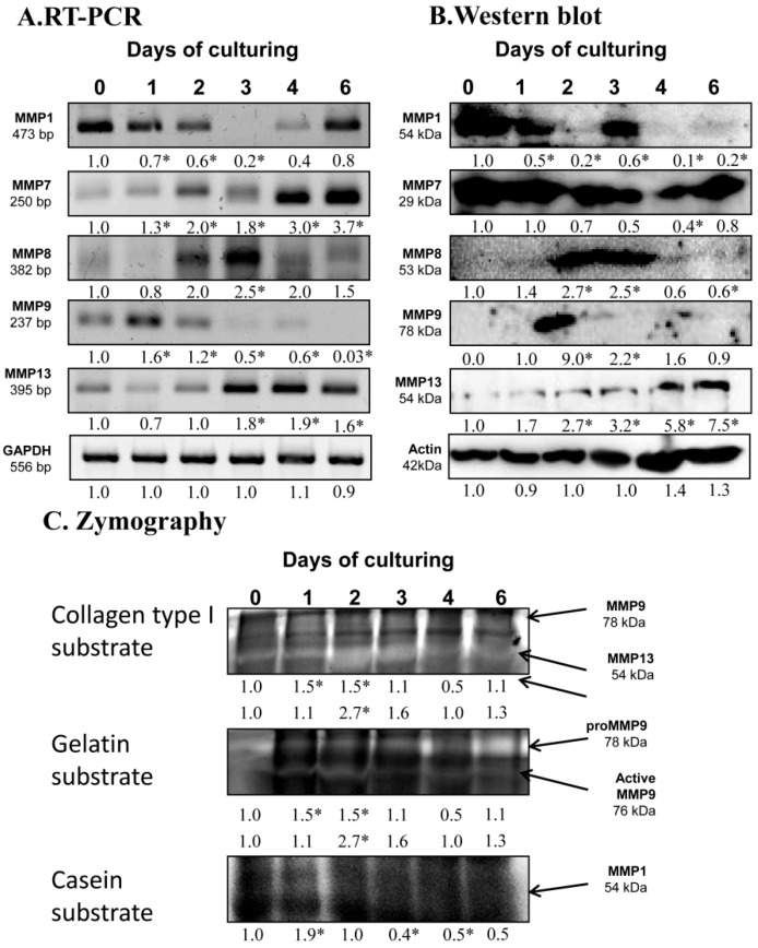 mRNA ( A ) and protein ( B ) expression of matrix metalloproteinases in chondrifying micromass cultures. Optical densities of signals were measured and results were normalized to the optical densities of 0-day cultures. In panels ( A , B ), the numbers below the signals represent integrated densities of signals determined by ImageJ freeware. For RT-PCR and Western blot reactions, GAPDH ( A ) and actin ( B ) were used as internal controls. Zymography ( C ) with collagen type I, gelatin, and casein substrates was also performed. Signals for MMP9 at 75 kDa, MMP13 at 54 kDa, proMMP9 at 85 kDa, and MMP1 at 54 kDa are labeled by arrows. Densities of three independent experiments are shown in the figures. Asterisks indicate significant differences compared to the 0-day cultures (* p
