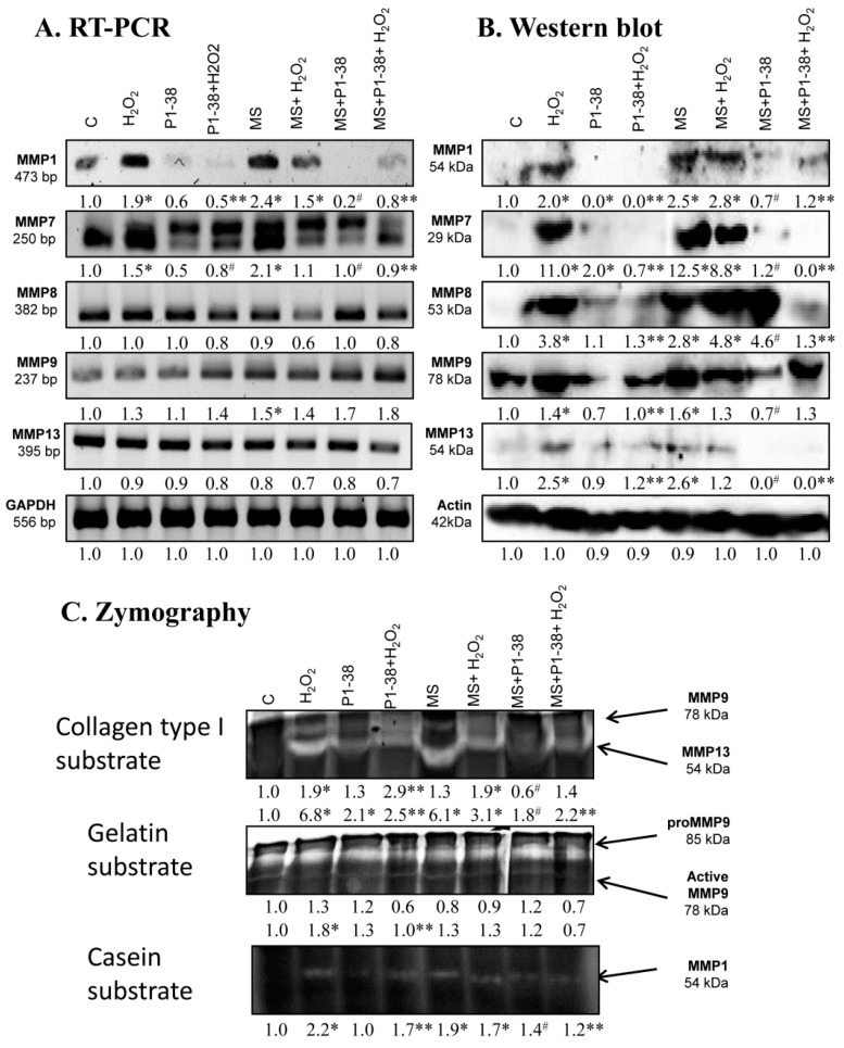 Effects of PACAP and/or oxidative stress and/or mechanical stress (MS) on mRNA ( A ) and protein ( B ) expression of matrix metalloproteinases in chondrifying micromass cultures. Optical densities of signals were measured and results were normalized to the optical densities of three-day cultures ( C ). In panels ( A , B ), the numbers below the signals represent integrated densities of signals determined by ImageJ freeware. For RT-PCR and Western blot reactions, GAPDH ( A ) and actin ( B ) were used as internal controls. Zymography ( C ) with collagen type I, gelatin, and casein substrates was also performed during PACAP treatments, oxidative stress, mechanical stress, and combinations of the three. Signals for MMP9 at 75 kDa, MMP13 at 54 kDa, proMMP9 at 85 kDa, and MMP1 at 54 kDa are labeled. Densities and means of three independent experiments (±standard error of the mean) are shown in the figures. Asterisks indicate significant differences compared with the three-day cultures ( p