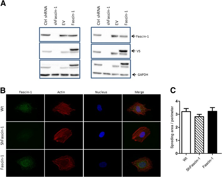 Validation and characterization of OS cell lines with altered Fascin-1 expression. ( a ) Western blot analysis with antibodies to Fascin-1 (top panel), to V5 (middle panel), and to GAPDH as a loading control (lower panel) of protein extracts from SaOS-2 (left panel) and 143B (right panel) cells stably transduced with a scrambled control ShRNA (Ctrl ShRNA), a Fascin-1-specific ShRNA (ShFascin-1), a pLenti6/V5-DEST empty vector (EV), or pLenti6/V5-DEST-Fascin-1 (Fascin-1). ( b ) SaOS-2/WT (upper row), SaOS-2/Fascin-1 (middle row), and SaOS-2/ShFascin-1 (bottom row) cells stained with anti-Fascin-1 (green), with Alexa-633-phalloidin (filamentous actin, red), and with NucBlue (nuclei in blue). ( c ) While silencing Fascin-1 reduces the perimeter of the cells in both cases, overexpression has little impact ( n = 34–57)