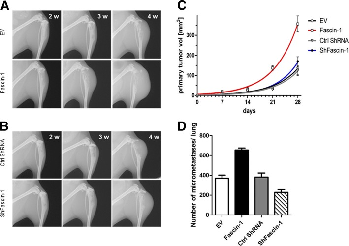Fascin-1 overexpression in 143B cells promotes intratibial primary tumor growth and lung metastasis in SCID mice. (a) Representative X-ray images of tumor-bearing hind limbs of mice injected with 143B/EV cells (upper panel) or with 143B/Fascin-1 (lower panel). The images show primary tumor appearance on indicated days after tumor cell injection. (b) Representative X-ray images of tumor-bearing hind limbs of mice injected with 143B/Ctrl ShRNA cells (upper panel) or with 143B/ShFascin-1 cells (lower panel). (c) Mean primary tumor growth over time in mice intratibially injected with 143B/EV cells (black), with 143B/Fascin-1 cells (red), with 143B/Ctrl ShRNA (grey) or with 143B/ShFascin-1 blue). (d) Quantification of the number of metastatic lesions in lungs