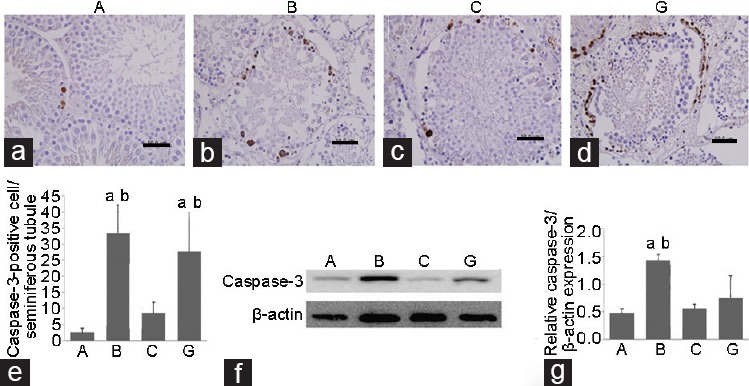Immunohistochemistry (×400) and western blot analysis of caspase-3 in ipsilateral testis. ( a ) The sham group has few caspase-3-positive cells. The number of stained cells is significantly higher in groups ( b ) B and ( d ) G than that in Group A. ( c ) The number of stained cells is significantly lower in Group C. Scale bars = 50 μm. ( e ) The number of caspase-3-positive cells per seminiferous tubule is shown. ( f ) The western blot image for caspase-3 in left testis is shown. ( g ) The relative caspase-3/β-actin expression in Groups A and C is significantly lower than that in Group B. a P