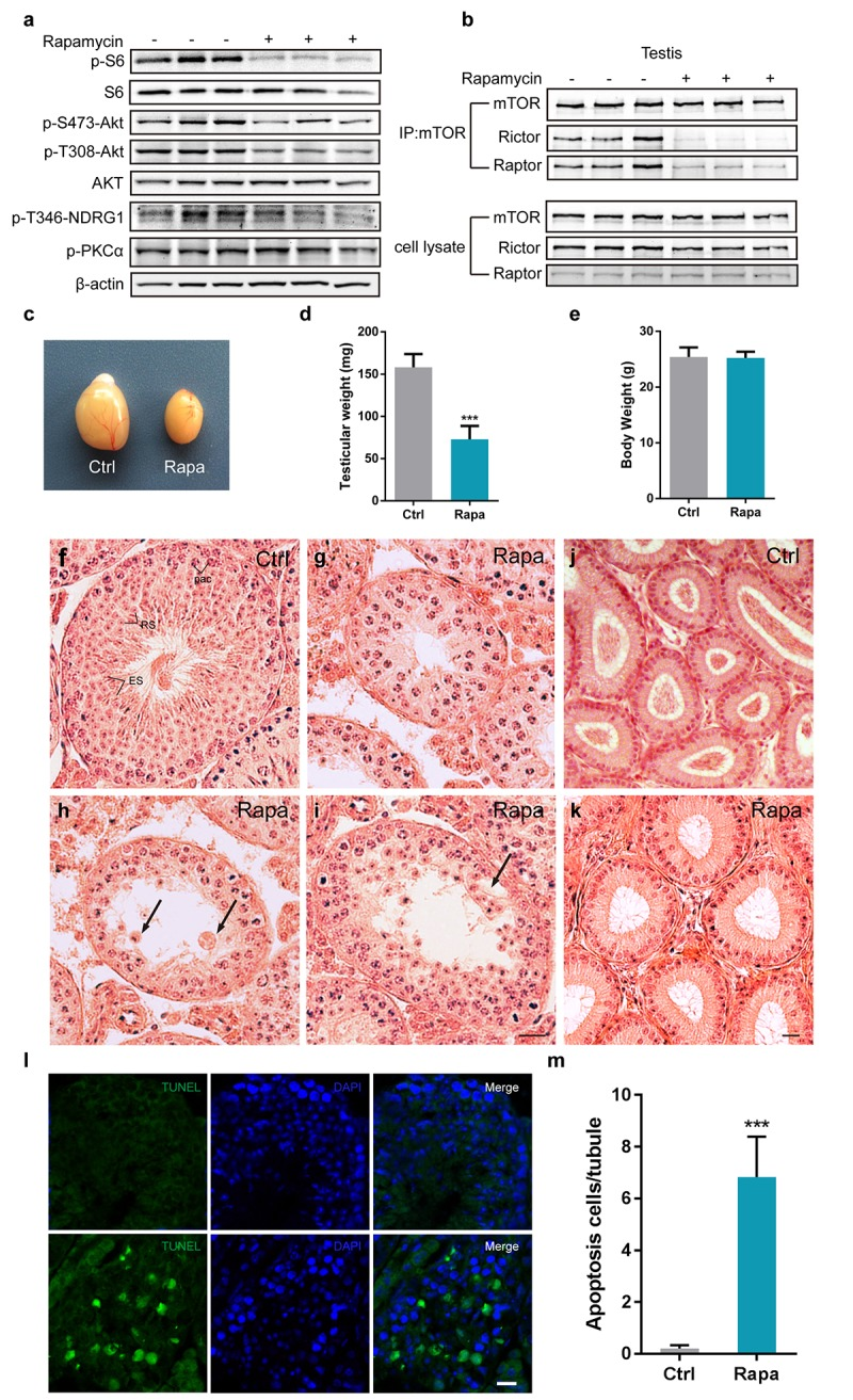 Chronic rapamycin treatment disrupts spermatogenesis in male mice and inhibits assembly of mTOR complexes. Tissues from adult males were analyzed after weeks of daily i.p. injection with rapamycin or vehicle control beginning at age 7-8 weeks. ( a ) Western blot analysis of phosphorylated S6, AKT, PKCα, and the SGK substrate NDRG1 in testicular extracts from adult males (control, n=3; rapamycin, n=3). ( b ) Chronic rapamycin treatment impairs mTOR complex integrity and activity. Immunoblotting of mTOR immunoprecipitates from testis tissue from adult males (control, n=3; rapamycin, n=3). ( c ) Gross morphology of testis tissue from control or rapamycin (rapa) treated males. ( d ) Testis weight (control, n=5; rapamycin, n=4). Error bars represent SD (***P