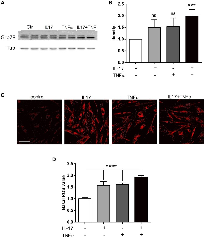 IL-17 and TNFα increase ER stress and mitochondrial ROS in myoblasts. Myoblasts were treated with IL-17 (50 ng/mL) and/or TNFα (1 ng/mL) for 24 h. Expression of BiP/Grp78 protein was measured by western-blot and the band density was normalized with tubulin expression (A,B) . Mitochondrial oxidative stress measurements (ROS) of human myoblasts was measured with the fluorescence intensity of CellRox Dye, using 40x objective of a confocal microscope Nikon A1r, scale bar 70 μm (C,D) . Data are the mean of 4 to 7 independent experiments ± SEM, *** p