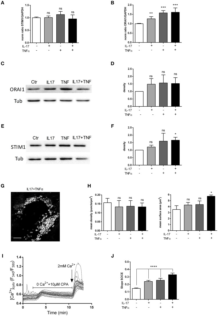 IL-17 and TNFα increase store-operated calcium entry. Myoblasts were treated with IL-17 (50 ng/mL) and/or TNFα (1 ng/mL). mRNA levels of STIM1 and ORAI1 at 12 h was expressed as fold changes compared to control (A,B) . ORAI1 and STIM1 protein was measured by western-blot and the band density was normalized with the tubulin expression. (C–F) Representative image of STIM1 puncta in human myoblast treated with IL-17 (50 ng/mL) and TNFα (1 ng/mL) for 24 h. Image Correlation Spectroscopy (ICS) analysis of STIM1 puncta (left inset) mean density of puncta (μm2). (right inset) mean surface of puncta (puncta/μm2). Data are the mean of 3 independent experiments with cells from 3 different donors ± SEM; * p