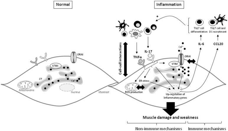 IL-17 and TNFα mediate muscle damage and weakness through immune and non-immune pathways in myoblasts. The immune cell infiltration in IIM constitutes a local source of cytokines and promotes the cell-cell interactions. IL-17 mainly produced by Th17 cells, and TNFα act in synergy on myoblasts to increase IL-6 and CCL20 secretion. Because IL-6 is involved in the Th17 cell differentiation and CCL20 in dendritic and Th17 cell recruitment, IL-6 and CCL20 mediate a positive feedback loop promoting local IL-17 production. IL-17 and TNFα induce also non-immune pathways with ROS production, ER stress and SOCE activation. The IL-17/TNFα effect of mitochondrial dysfunction, ER stress, and SOCE activation are probably closely linked. SOCE and calcium dysregulation contribute to the IL-6 release induced by IL-17/TNFα. CCL20, chemokine (C-C motif) ligand 20; DC, dendritic cells; ER, endoplasmic reticulum; IL, interleukin; ROS, reactive oxygen species; STIM, stromal interacting molecule; TNFα, tumor necrosis factor-α.