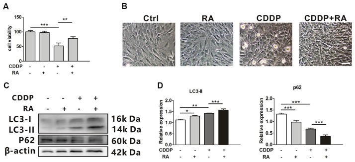 Rapamycin promotes HEI-OC1 cell survival after cisplatin-induced damage. (A) The CCK8 assay was performed to examine cell viability of HEI-OC1 cells following CDDP (20 μM) exposure for 24 h with or without RA (0.5 μM; n = 3 individual experiments). (B) The image of HEI-OC1 cells following CDDP (20 μM) exposure for 24 h with or without RA (0.5 μM; n = 3 individual experiments). (C,D) Western blots and densitometry analysis for autophagy marker LC3-II and p62 in CDDP (20 μM) exposure for 24 h with or without RA (0.5 μM; n = 3). Data represent the mean ± SEM. * p