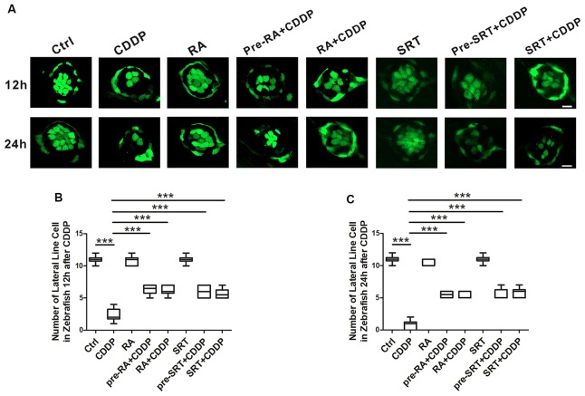 Autophagy activation promotes hair cell survival after cisplatin-induced damage in zebrafish lateral line. (A) Hair cell counts obtained from CDDP exposure for 12 or 24 h with or without RA or SRT1720 treatment ( n = 6 zebrafish larvae). Scale bar, 10 μm. (B) The hair cells were counted at 12 h after CDDP exposure. (C) The hair cells were counted 24 h after CDDP exposure. Data represent the mean ± SEM. *** p