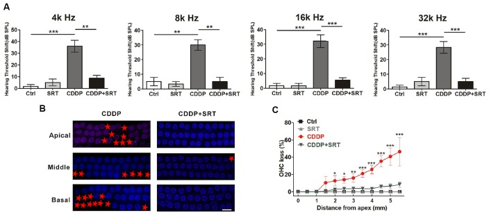 SIRT1 activation attenuates cisplatin-induced hair cell loss and hearing loss in C57BL/6 mice. (A) ABR thresholds decreased with SRT1720 (100 mg/kg, intragastric administration pre-12 h, pre-1 h, post-12 h) treatment mice following CDDP (16 mg/kg, intraperitoneal injection) exposure compared with the CDDP group at 4, 8, 16 and 32 kHz ( n = 6 mice). (B,C) Surface preparations were stained with DAPI. Hair cell counts obtained from the CDDP and CDDP+SRT1720 group ( n = the right cochlea of six mice). Scale bar, 10 μm. Data represent the mean ± SEM. * p