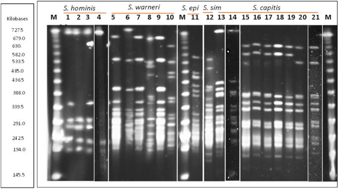 PFGE macrodigestion patterns of staphylococcal skin isolates following genomic digestion with Sma 1. Lanes 1–4 = Staphylococcus hominis : APC 2925, 2924, 2939 and 3365; lanes 5–10 = Staphylococcus warneri : APC 2942, 2922, 2937, 2947, 2940 and 2930; lane 11 = Staphylococcus epidermidis : APC 3477; lane 12 = Staphylococcus simulans APC 2926; lanes 13–21 = Staphylococcus capitis APC 2934, 2918, 2923, 2941, 3480, 2946, 2932, 2927 and 3481. Lanes 4, 14 and 21 were taken from other PFGE gels with the same lambda marker (M) and input into this gel. epi = epidermidis; sim = simulans. Artefact in lane 3 below the first band is not a Sma 1 DNA band.