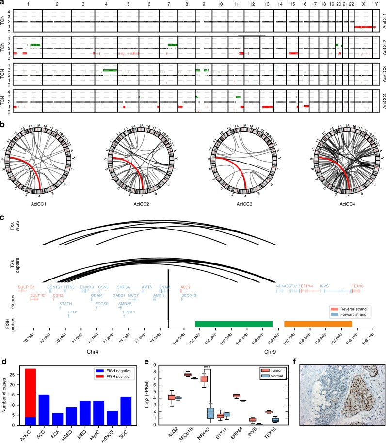 Identification of recurrent rearrangements t(4;9)(q13;q31) in AciCCs. a Plots of copy number changes in four AciCCs with paired tumor-normal whole genome sequencing (WGS) show gains (green) and losses (red) in the individual tumors. b Circos plots of translocations in the four cases, with recurrent rearrangements t(4;9)(q13;q31) highlighted in red. c Upper panel: Detailed mapping of t(4;9)(q13;q31) chromosomal breakpoints of the four AciCCs with paired tumor-normal WGS and two AciCCs with only tumor WGS demonstrate the distribution of 4q13 breakpoints among ~ 340 kbps spanning eight different genes at the SCPP gene cluster (left side), and clustering of the 9q31 breakpoints upstream of the NR4A3 gene locus (right side). Middle panel: Detailed mapping of t(4;9)(q13;q31) chromosomal breakpoints of nine additional AciCCs with tumor hybrid capture sequencing data confirms the pattern of 4q13 breakpoints within the SCPP gene cluster (left) and upstream of the NR4A3 gene locus (right). Lower panel: SCPP gene cluster (left side), NR4A3 and neighboring genes (right side) with green and orange bars indicating the location of NR4A3 break apart FISH probes. d Absolute number of cases with genomic rearrangements of the NR4A3 gene locus in 28 AciCCs and 75 other salivary gland neoplasms analyzed by FISH. e mRNA expression (log2 FPKM values) of NR4A3 and neighboring genes in ten tumor samples and three normal parotid gland samples, with only NR4A3 showing a significant upregulation (deSeq2 47 ; *** P