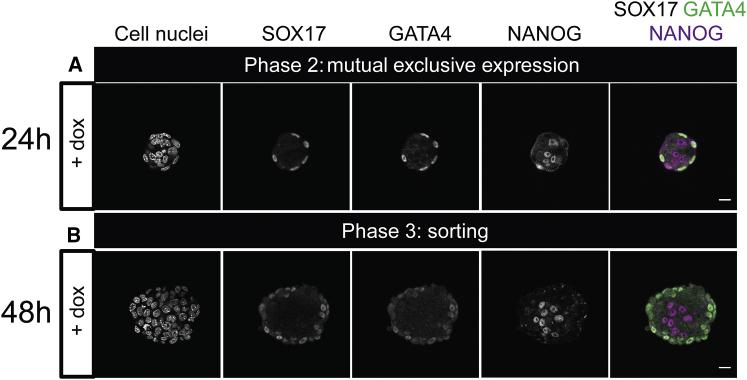 Mouse ICM organoids express the PrE markers GATA4 and SOX17. Mouse tet::GATA6 ESCs were stimulated for 6 h with doxycycline (+ dox) to induce PrE differentiation. After the removal of dox, 200 cells formed ICM organoids and were cultured for 24 h or 48 h. ( A ) GATA4 and SOX17 expression was found on the edge of the ICM organoids 24 h after formation. NANOG expression was found within the ICM organoids. ( B ) GATA4 and SOX17 expression was maintained 48 h after ICM organoid formation. Microscope: Zeiss LSM880; objective: 40×/1.3 oil differential interference contrast; scale bars, 20 μ m. To see this figure in color, go online.