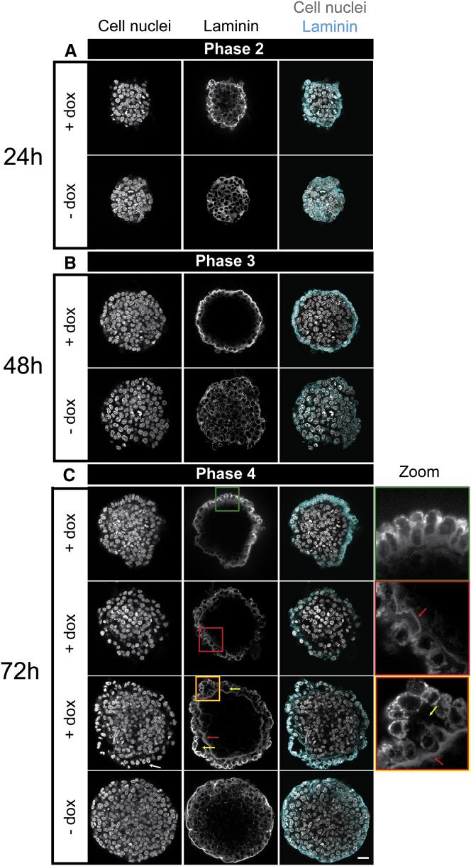 ICM organoids show secretion of basement membrane component laminin. Mouse tet::GATA4 ESCs were stimulated for 6 h with doxycycline (+ dox) to induce PrE differentiation. Cells that were not stimulated with dox (− dox) served as controls. ( A ) Heterogeneous laminin distribution in 1-day-old ICM organoids at stage of mutual exclusive expression. ( B ) After 48 h of ICM organoid formation, secretion of laminin is restricted to the outer layer. ( C ) After 72 h, at the stage of NANOG downregulation, laminin layers of different thicknesses were detected between the PrE layer and inner Epi core ( red arrows and red boxes , second and third rows ). Different structures could be observed and indicate differentiation toward visceral endoderm (VE) and parietal endoderm (PE): aligned columnar cell structure ( green box , first row ), aligned cuboidal cell morphology ( white arrows , third row , first column ), and vacuoles ( yellow arrows and box , third row ). Characteristics for VE were columnar- or cuboidal-shaped cells and low laminin expression; for PE, they were smaller-sized cells and loosely connected to the Epi core and high laminin expression. For more details, please also see text. Images show a single slice from the ICM organoids' center. Microscope: Zeiss LSM780; objective: 63×/1.40 oil; scale bars, 20 μ m. To see this figure in color, go online.
