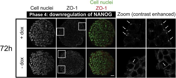 ICM organoids show characteristics of epithelisation. Mouse tet::GATA4 ESCs were stimulated for 6 h with doxycycline (+ dox) to induce PrE differentiation. Cells that were not stimulated with dox (− dox) served as controls. Aggregates were formed and kept undisturbed for 72 h. ICM organoids show punctate patterns of ZO-1 at the outer cell layer (see zoomed regions in boxes and arrowheads ). Control aggregates show continuous ZO-1 staining at the junctions (see zoomed regions in boxes and arrowheads ). Images show single slices from the ICM organoid's center. Microscope: Zeiss LSM780; objective: 63×/1.40 oil; scale bars, 20 μ m. To see this figure in color, go online.