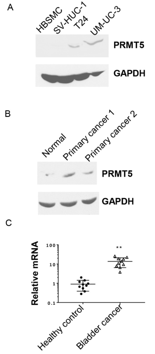 Expression level of PRMT5 is higher in bladder cancer cell lines and primary tissues. A. Western blot of PRMT5 protein in bladder cancer cells (T24 and UM-UC-3) and control normal bladder cell lines (HBSMC and SV-HUC-1). B. PRMT5 expression level in primary bladder cancer tissues (primary cancer 1 and primary cancer 2) and control normal bladder cancer adjacent tissue (normal). C. The relative expression of PRMT5 in 10 pairs of FFPE samples from bladder cancer patients and healthy controls was analyzed by qRT-PCR. ** P