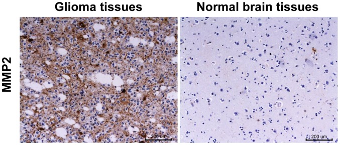 Detection of MMP-2 expression in glioma tissues and paired normal brain tissues via IHC (magnification, ×200). MMP-2, matrix metalloproteinase-2; IHC, immunohistochemistry.