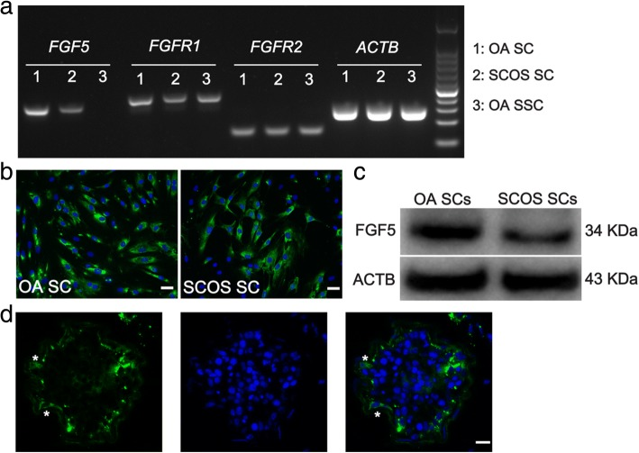 Expression of FGF5 in the human testis of OA and SCOS patients. a RT-PCR showed the expression of FGF5 , FGFR1 , and FGFR2 in freshly isolated human Sertoli cells. ACTB was used as a loading control of total RNA. b Immunocytochemistry showed FGF5 expression in human Sertoli cells of OA and SCOS patients. c Western blot confirmed that expression of FGF5 was decreased at protein level in Sertoli cells from SCOS patients. d IHC revealed the location of FGF5 expression in the human testis (scale bar = 10 μm). Asterisk indicated the location of FGF5 expression in the human testicular section