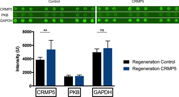 Detection of CRMP-5 and PKB in retinal proteome through <t>microarray.</t> CRMP-5 was detected significantly higher in the experimental group compared to the control group. Additionally, PKB was detected insignificantly higher in the experimental group. <t>GAPDH</t> served as loading control (n = 6, p