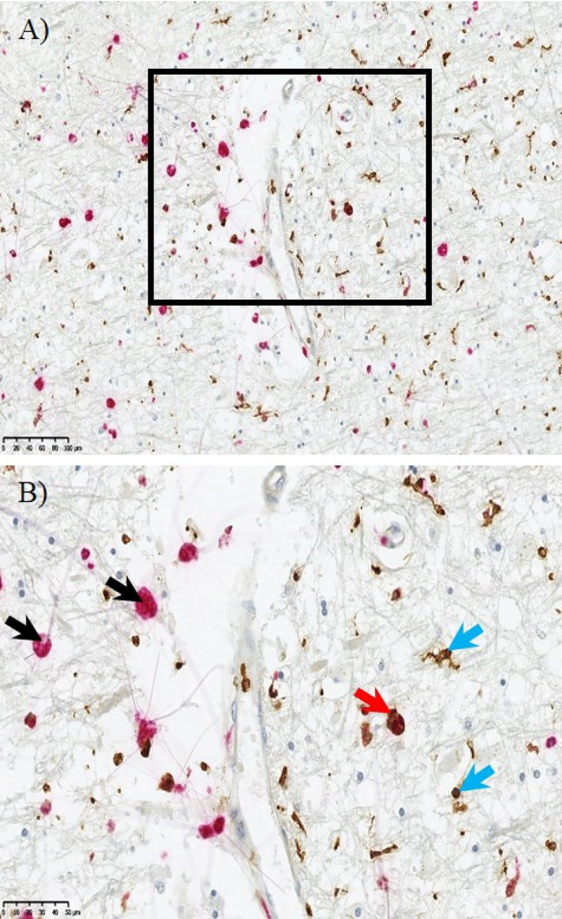 Microglial immunohistochemistry. Distinct microglial cell populations are evident within the deep subcortical lesion (DSCL). CD68 + amoeboid microglial (red) were indicated by the black arrow and separate more ramified cells were labelled with Iba-1 (brown) indicated by the blue arrow. Dual staining showed some colocalisation of CD68 (red) and Iba-1 (brown) indicated by the red arrow. Scale bar = 50μm.