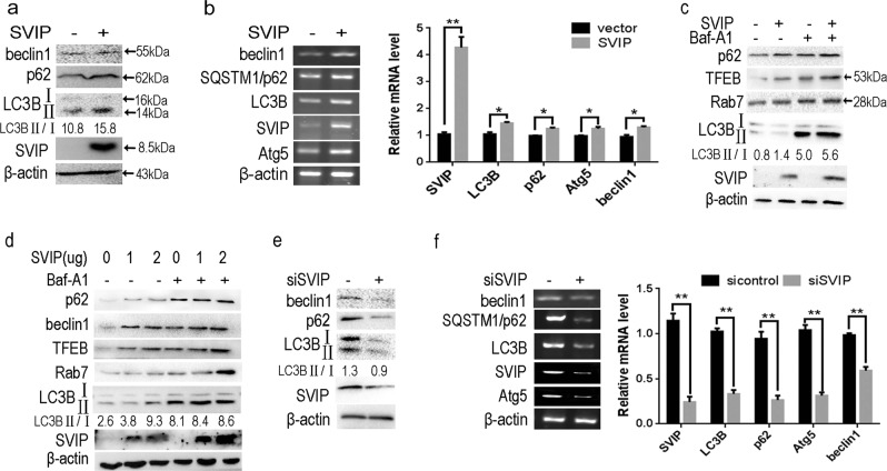 SVIP regulates autophagy in HepG2 cells. a Western blots (WB) and b PCR showing the expression of Beclin1, p62, LC3B, Atg5 in HepG2 cells transfected with SVIP expressing or control plasmid. c and d Western blots showing the expression of TFEB, Rab7, and conversion of LC3BII to LC3BI ( c ) in cells transfected with SVIP expressing or/and control plasmid in different dose ( d ). HepG2 cells were transfected with 2 μg total DNA, containing SVIP-expressing plasmid or vector control or 1 μg SVIP-expressing plasmid + 1 μg vector control. Baf-A1, (100 ng/ml) Bafilomycin A1. e Western blots and f PCR showing the expression of Beclin1, p62, LC3B, Atg5 in silence SVIP HepG2 cells. 24 and 72 h after the plasmid and siRNA transfection, cells were subjected to WB and reverse-transcriptional PCR, respectively. Bar graph indicates the bands' intensity of mRNA calibrated with β-actin RNA level. LC3-II/LC3-I ratio represents the autophagy flux. Data are presented as mean ± standard division (SD) in three independent experiments. * p