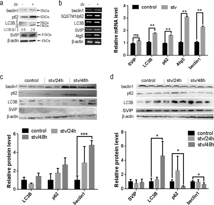 Starvation enhanced autophagy but had no effect on SVIP expression in HepG2 cells and in mice. a Western blots (WB) and b PCR showing the expression of SIVP as well as Beclin1, p62, LC3B, Atg5. HepG2 cells were maintained in HBSS for 2 h for starvation. Data are presented as mean ± SD in three independent experiments. LC3-II/LC3-I ratio represents the autophagy flux. c and d Western blots (WB) and PCR showing the expression of SIVP, as well as Beclin1, p62, and LC3B in mouse liver ( c ) or brain ( d ). Mice were starved for an indicated period ( n = 3). Bar graph indicates the band' intensity calibrated with β-actin. * p