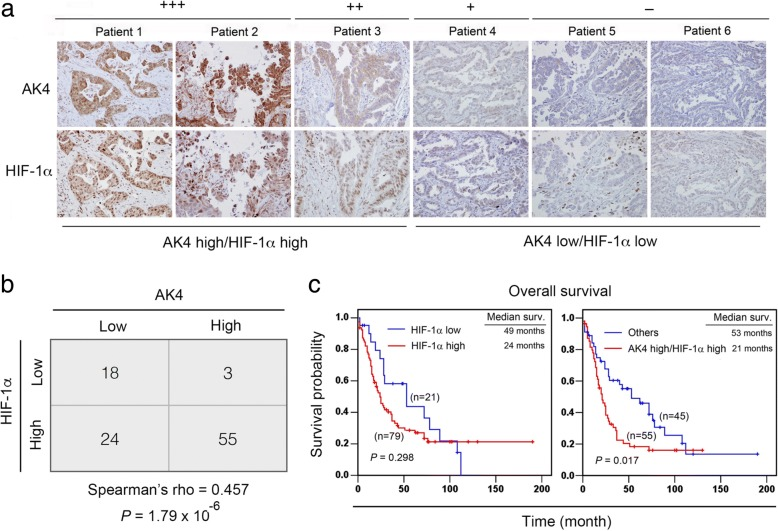 AK4 is positively correlated with HIF-1α expression in NSCLC patients. a Representative IHC images of AK4 and HIF-1α expression scores in serial sections of NSCLC tissues. b Spearman's rho correlation analysis of the IHC staining results for AK4 and HIF-1α in 100 NSCLC patients. c Overall survival analysis of 100 lung cancer patients stratified according to HIF-1α alone or both AK4 and HIF-1α